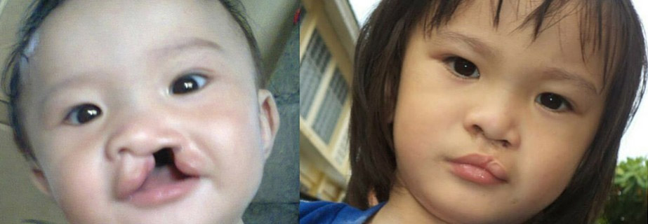Jake-Operation-smile-before-after