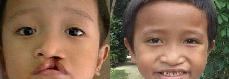 Rian-Operation-smile-before-after